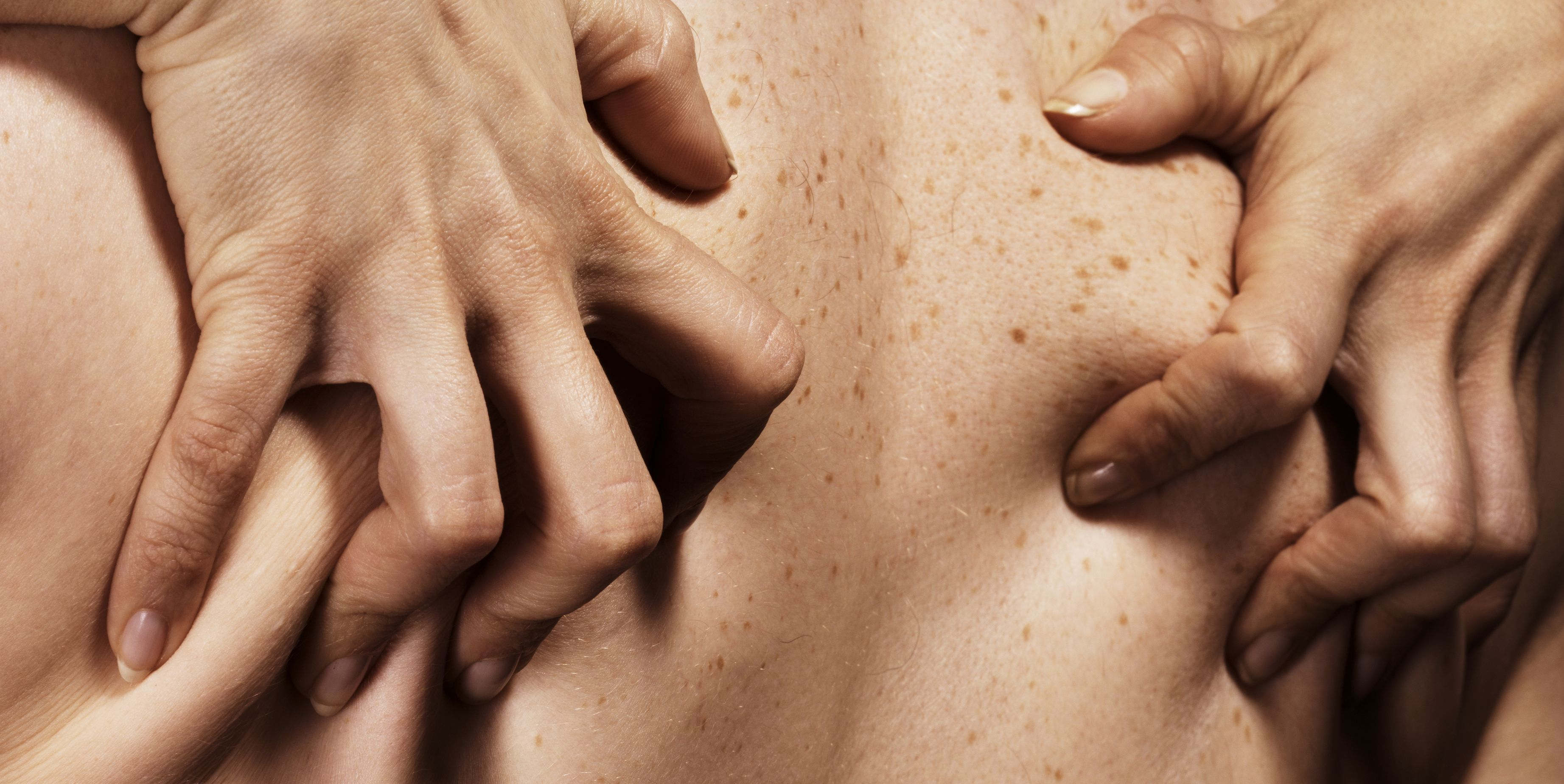 9 Common Sex Injuries—And How to Deal