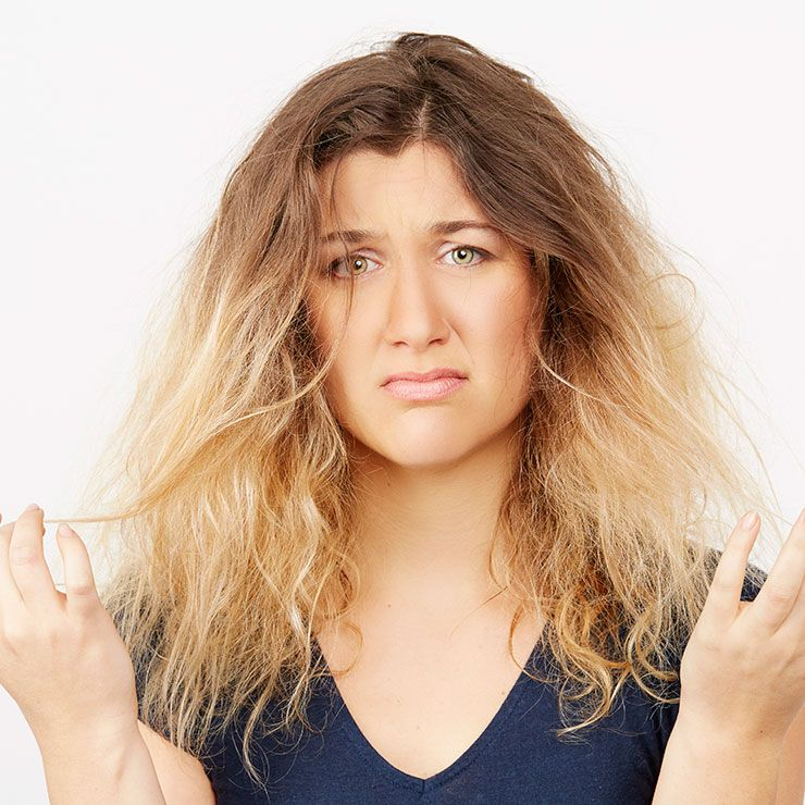 9 Solutions For Dry, Brittle Hair | Prevention