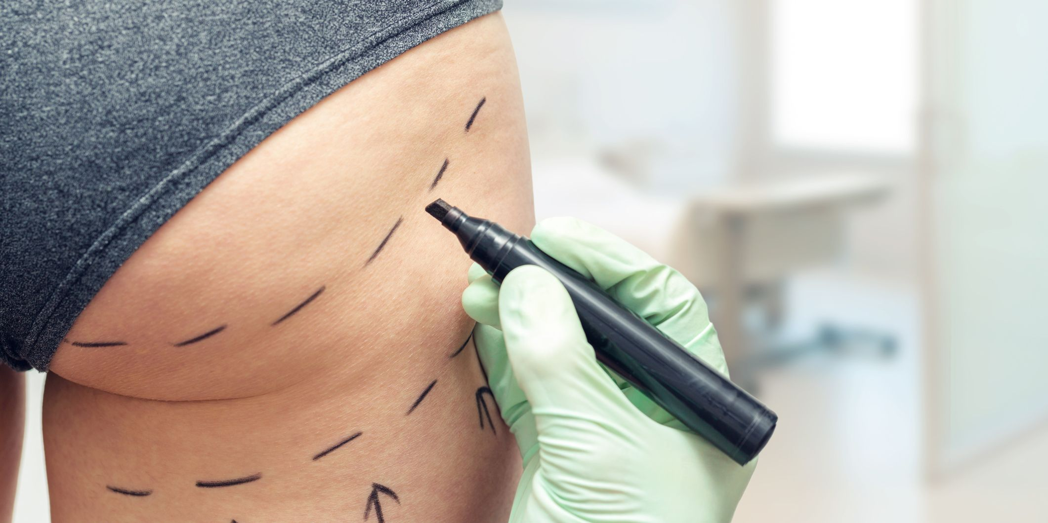 A second British woman has died as a result of cosmetic surgery on her bum