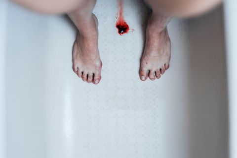 Skin, Leg, Finger, Nail, Toe, Hand, Foot, Joint, Arm, Human leg,