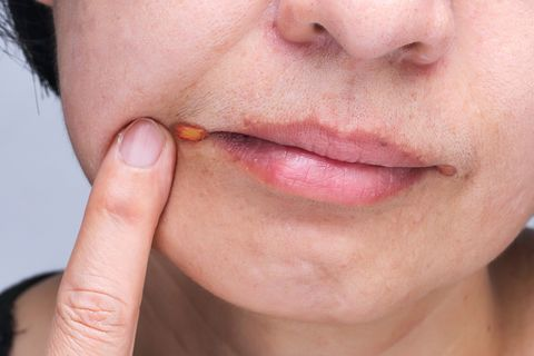 Angular Cheilitis Causes And Treatment Angular Cheilitis Or Cold Sore