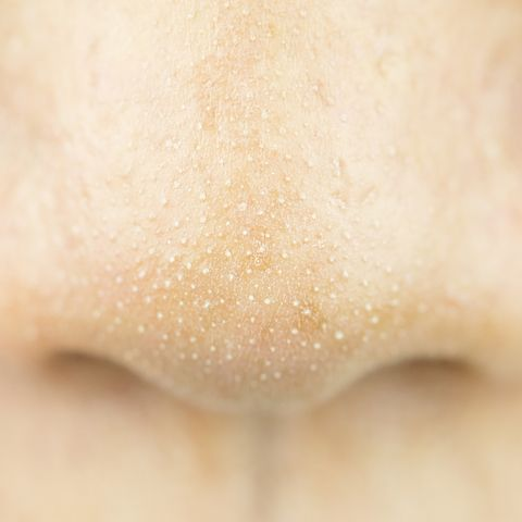 Skin, Nose, Close-up, Lip, Material property, Neck, Mouth, Beige, Jaw, Tooth,