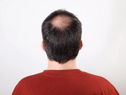 Hair, Neck, Hairstyle, Chin, Ear, Shoulder, Human, Facial hair, Jaw, Black hair,