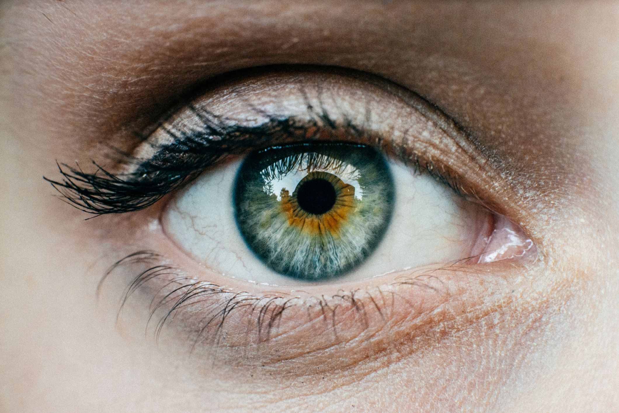 What Is Ocular Melanoma 18 People In 2 States Diagnosed