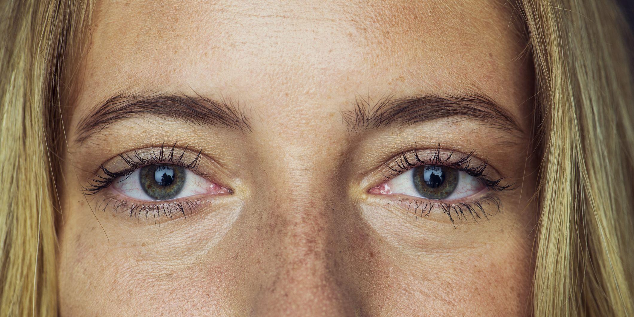 hyperpigmentatie, betekenis, behandelen, donkere huid, donkere vlekjes