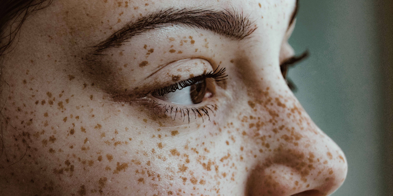 An Acid Attack Left Me Needing An Eyebrow Transplant