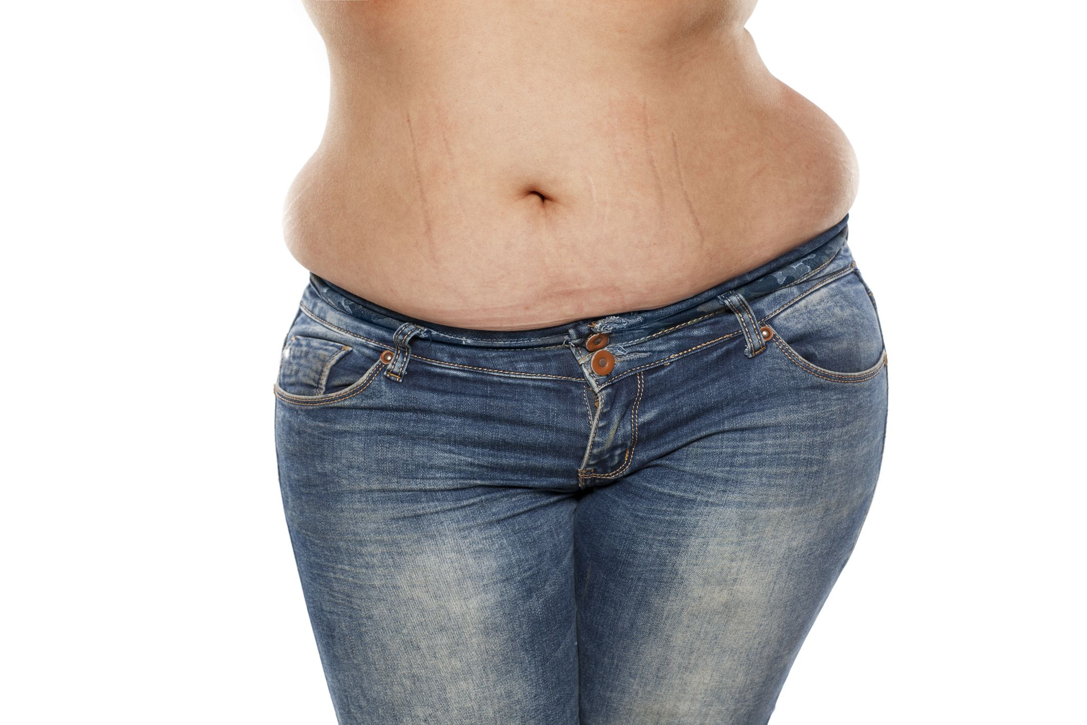 stretch marks on the stomach of a fat woman in jeans on a white background