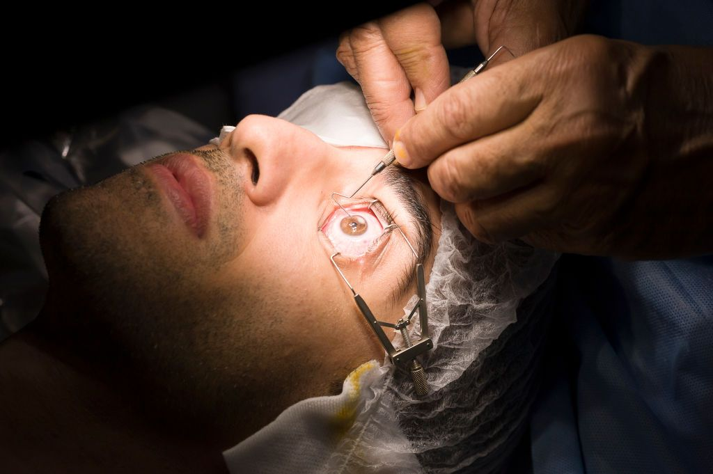 So Is LASIK Eye Surgery Safe?