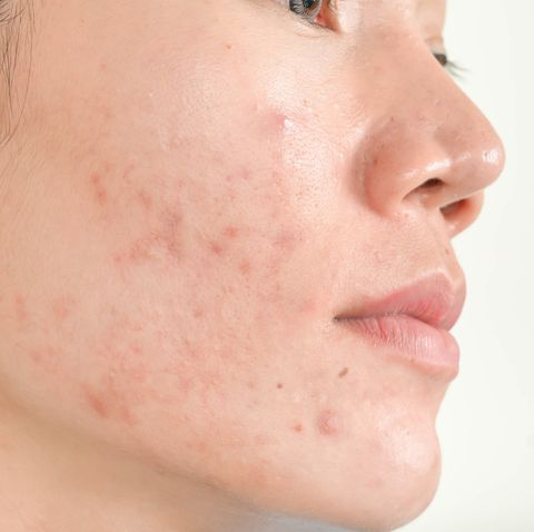 6 Adult Acne Causes and How to Get Rid of It, Say Dermatologists