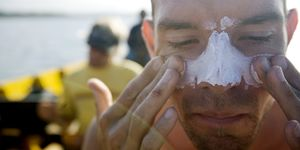 zelfgemaakte-zonnebrand-gevaarlijk