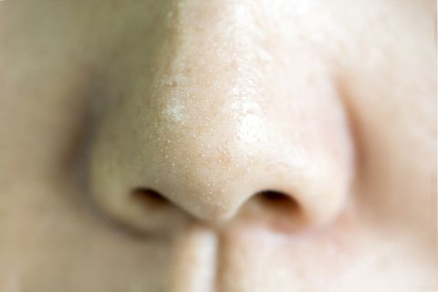 close up acne small pimple on nose concept of beauty and health