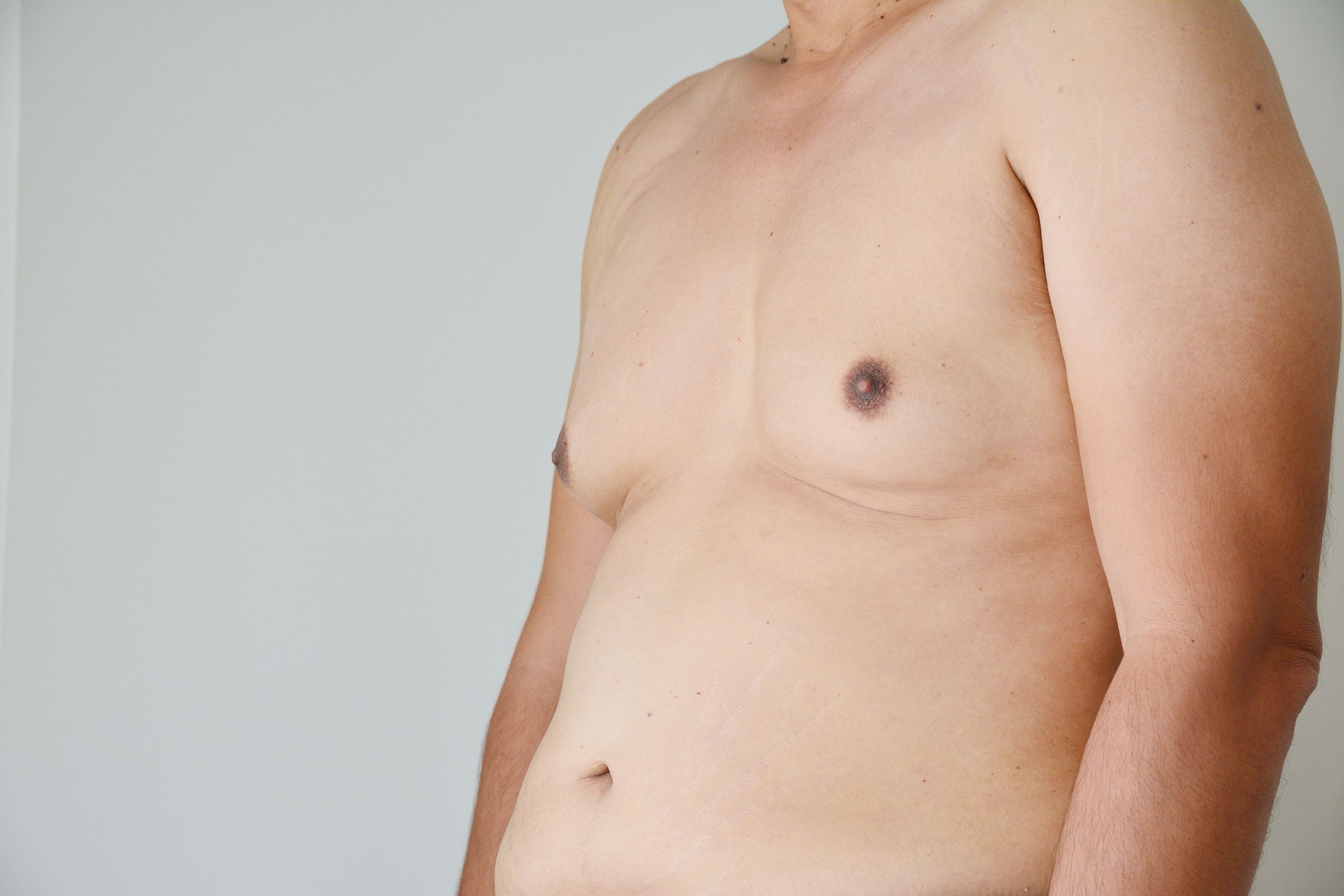 Gynecomastia Surgery On Rise More Men Are Getting Breast