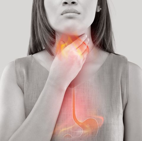 Woman with symptoms of heartburn or acid indigestion