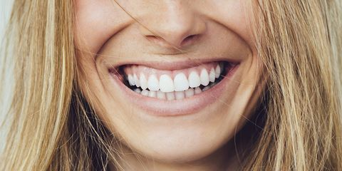 Everything You've Ever Wanted to Know About Getting Veneers