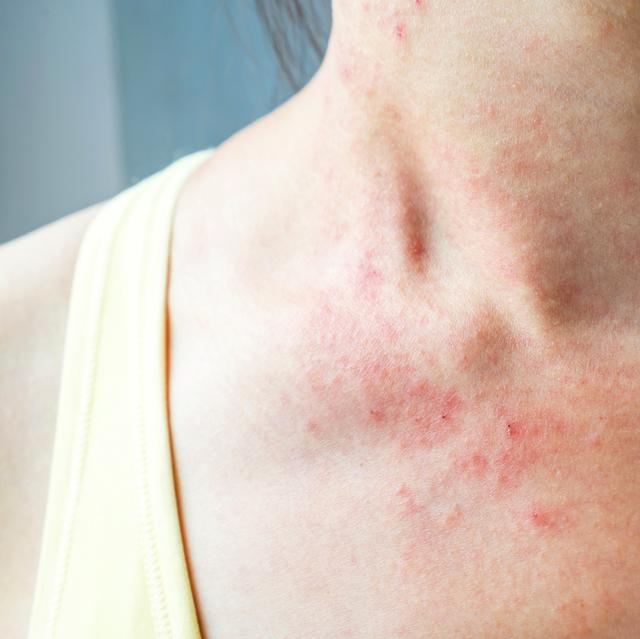 skin rash on chest