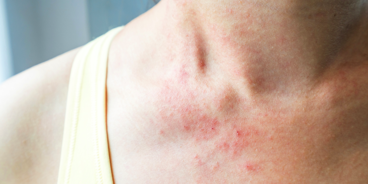 18 Pictures of Common Skin Rashes and How to Identify Their Symptoms