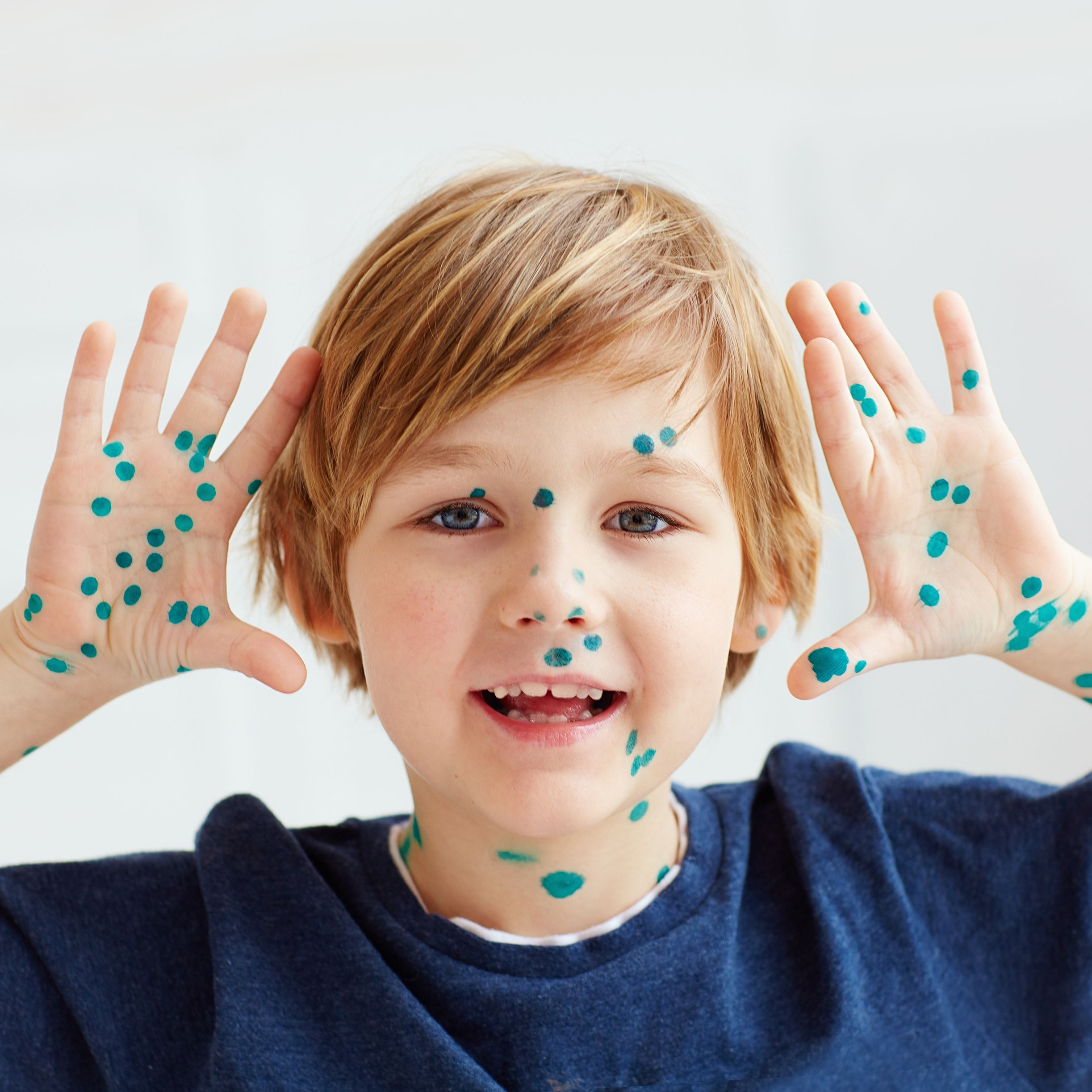 Can you catch chickenpox twice as an adults