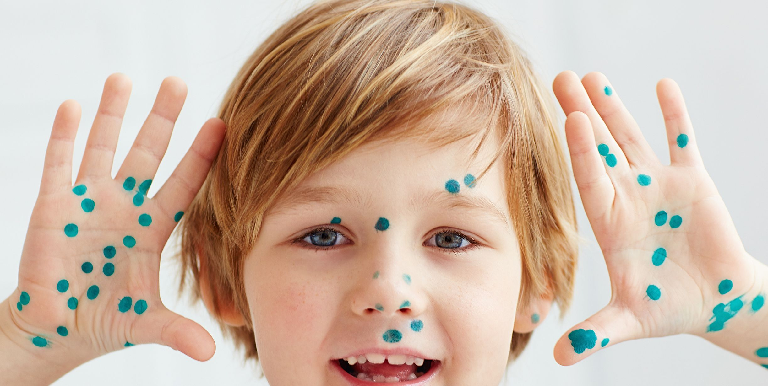 cute young boy, kid having chicken pox, that is cured with brilliant green antiseptic