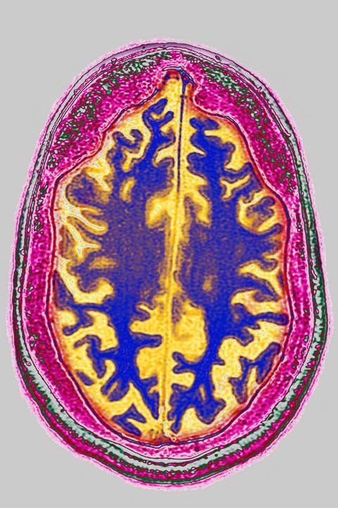 Alzheimer's Disease Brains Herpes Virus