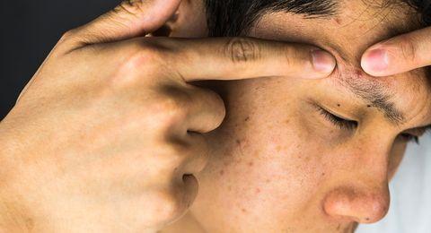 causas acné adulto