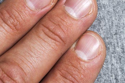 Finger, Nail, Skin, Hand, Close-up, Material property, Flesh, Nail care, Thumb,