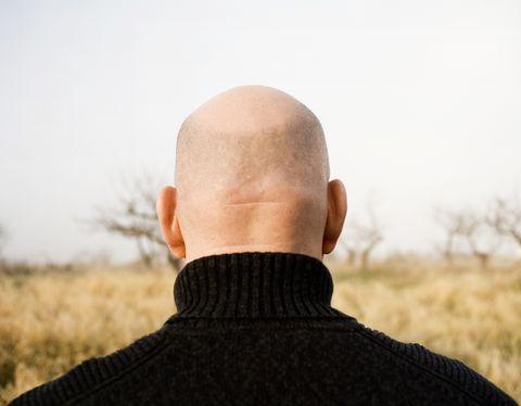 closeup of a bald head sweden