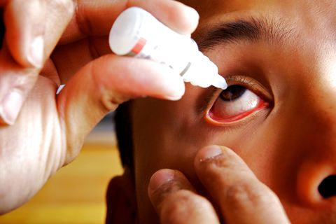 Maxidex Eye Drops Dexamethasone Uses Dosage And Side Effects