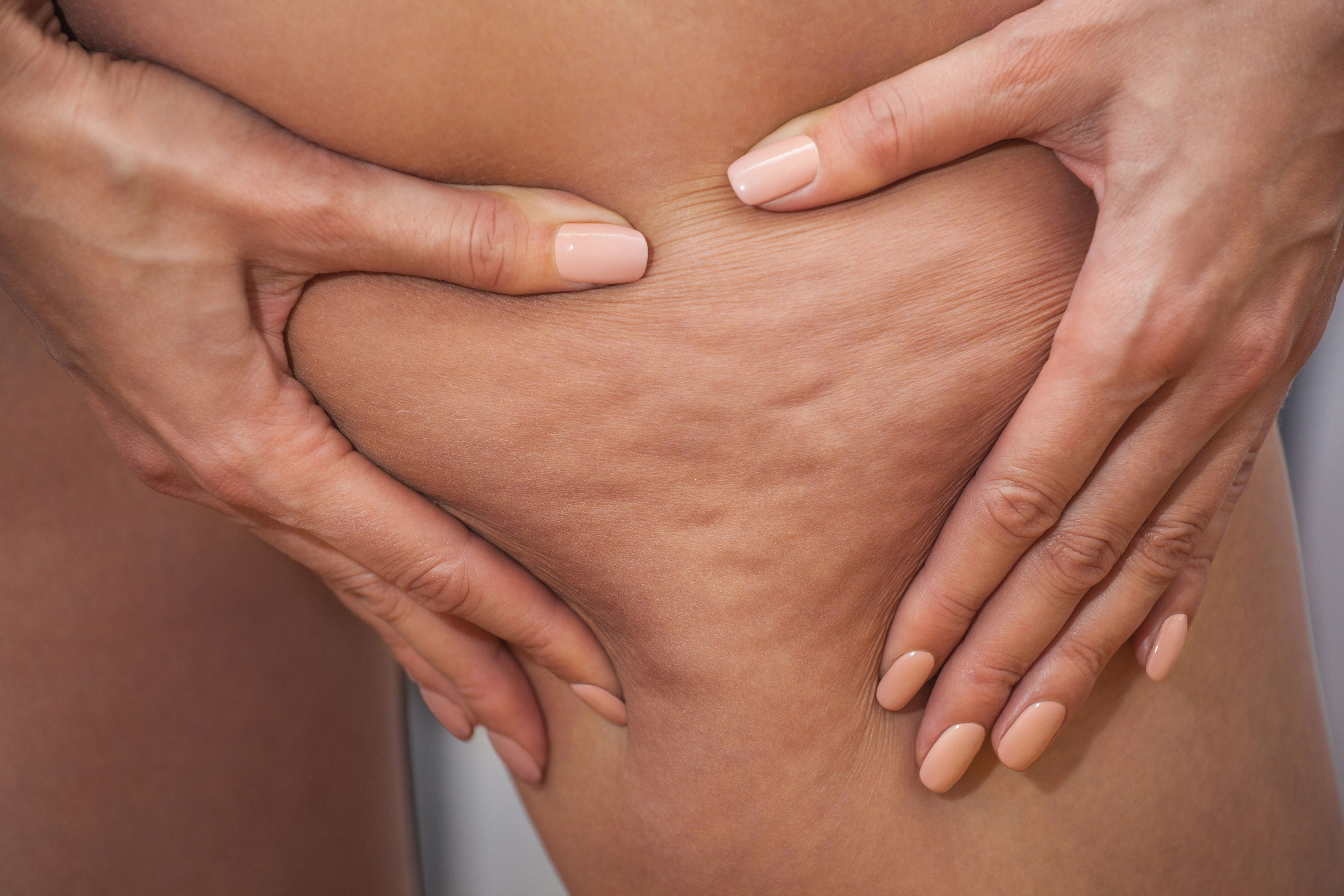 Cellulite Cups Can The At Home Treatment Really Get Rid Of Cellulite