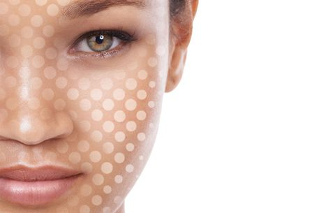 Girl with whiteheads, skin dots on face