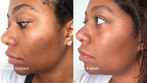 Glossier Acne Solution How Alpha Hydroxy Acids Help Acne