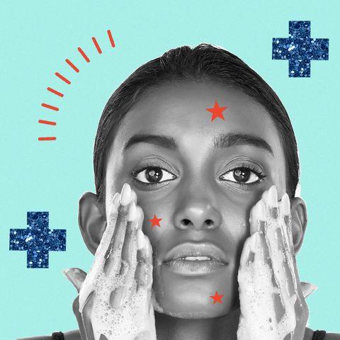 qué es el acné cosmético y cómo combatirlo