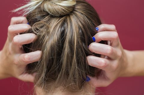 4 Itchy Scalp Treatments You Need To Try ASAP