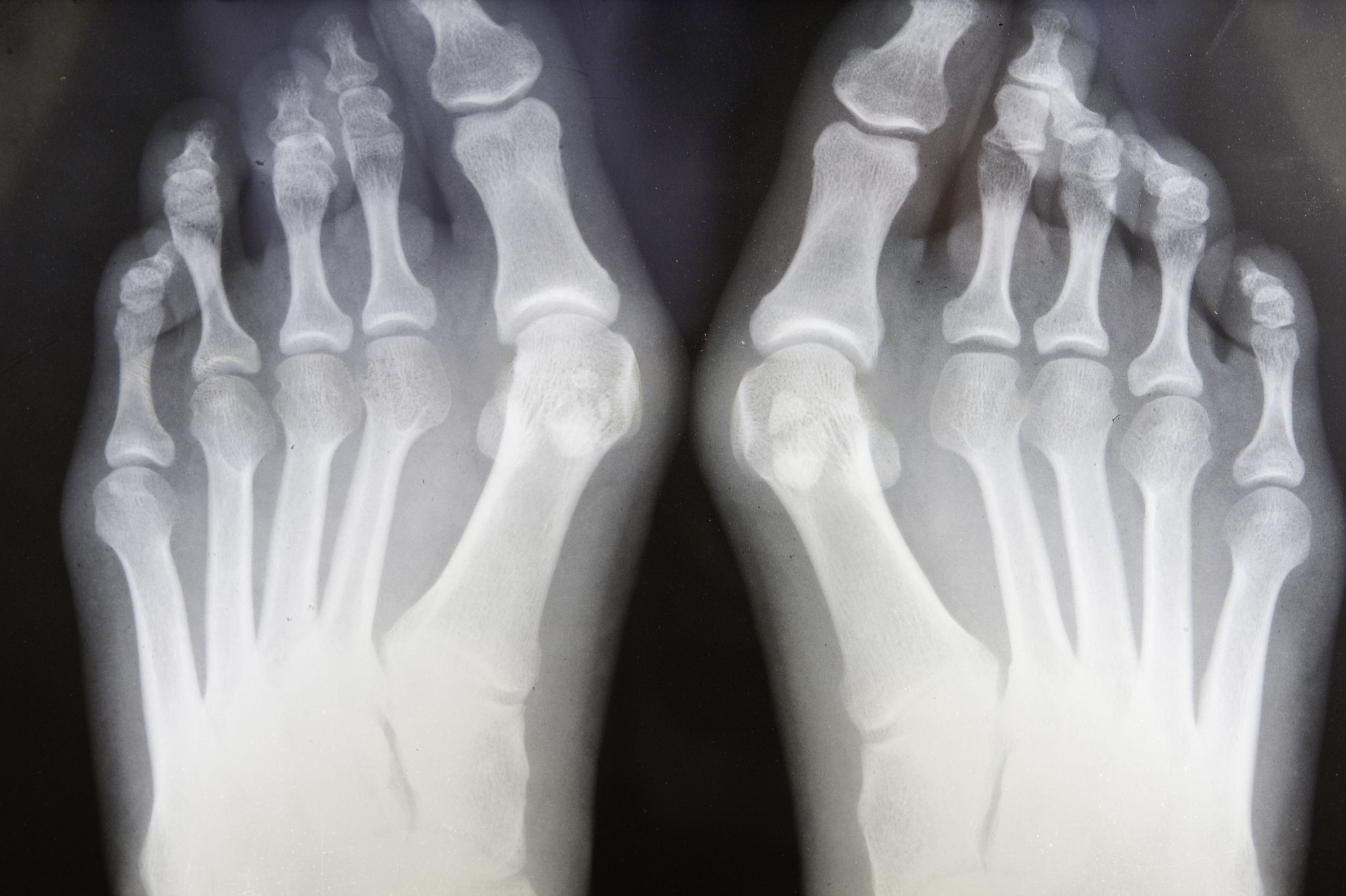 Grungy X-ray Of Feet With Bunions