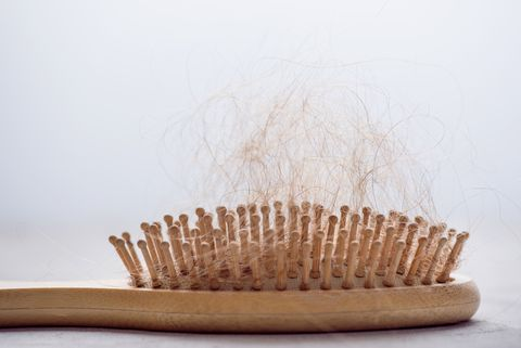 Hair Loss. Hairbrush with hair stuck in it