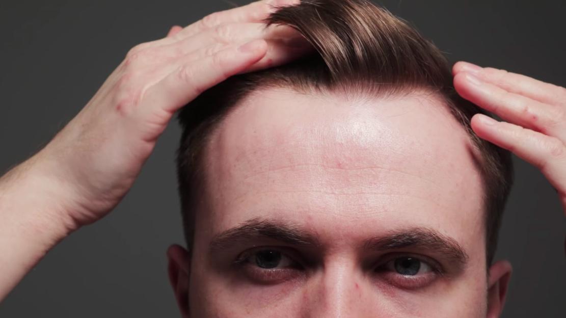 Receding is my help hairline 3 Ways