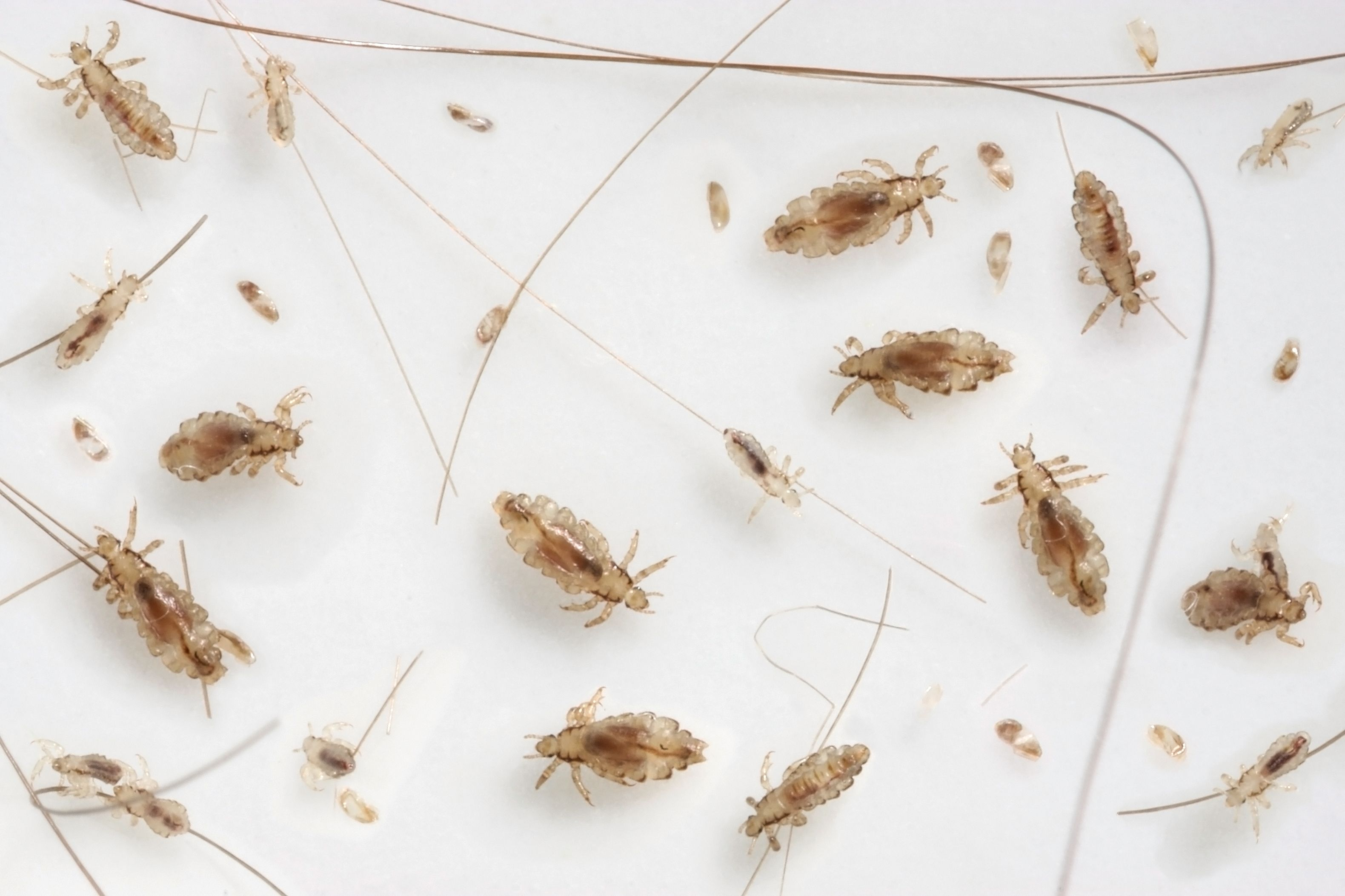Natural Remedies for Lice — How to Get