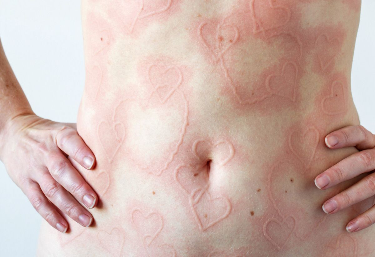 'What It's Like To Have Dermatographia, A Skin Condition That Lets Me Draw All Over My Body'