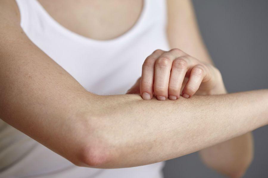 濕疹,異味性皮膚炎,搔癢,乾癢,皮膚科,皮炎,發炎,類固醇,去角質,磨砂膏,beauty
