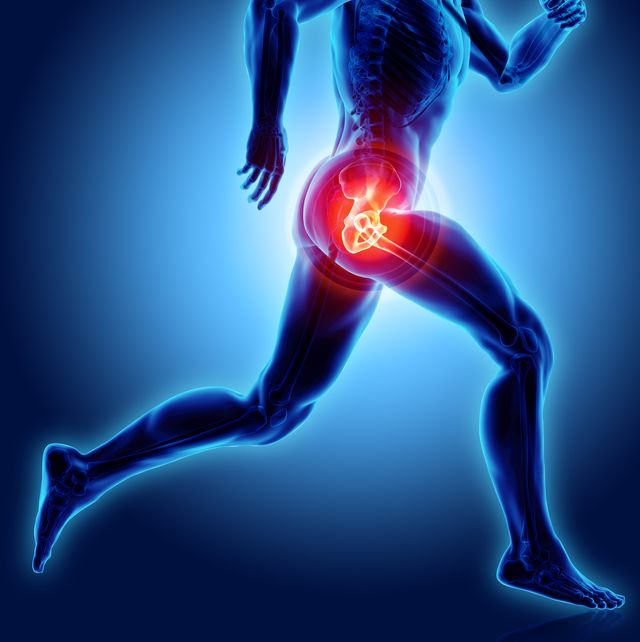 hip painful skeleton x ray, 3d illustration