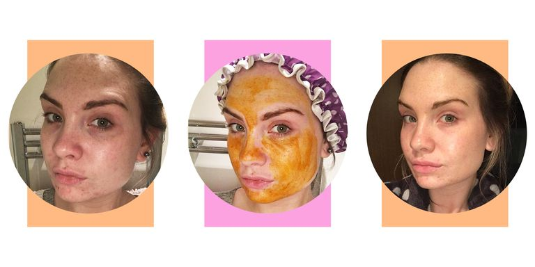 This DIY Honey and Turmeric Face Mask Will Fix Acne, Dark ...