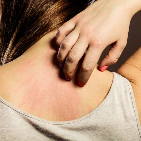 horsefly bite symptoms, causes and treatments