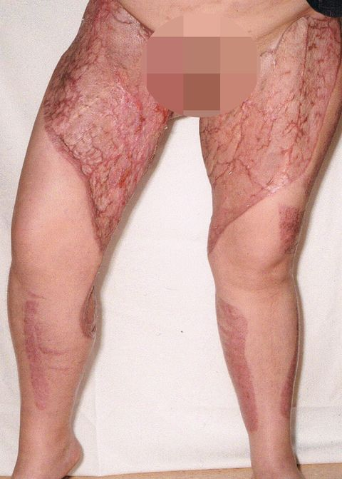 This Woman Developed A Flesh Eating Infection From Her