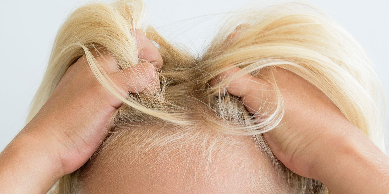 Natural Remedies to Get Rid of Head Lice