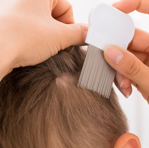Natural Remedies for Lice — How to Get Rid of Head Lice and Nits