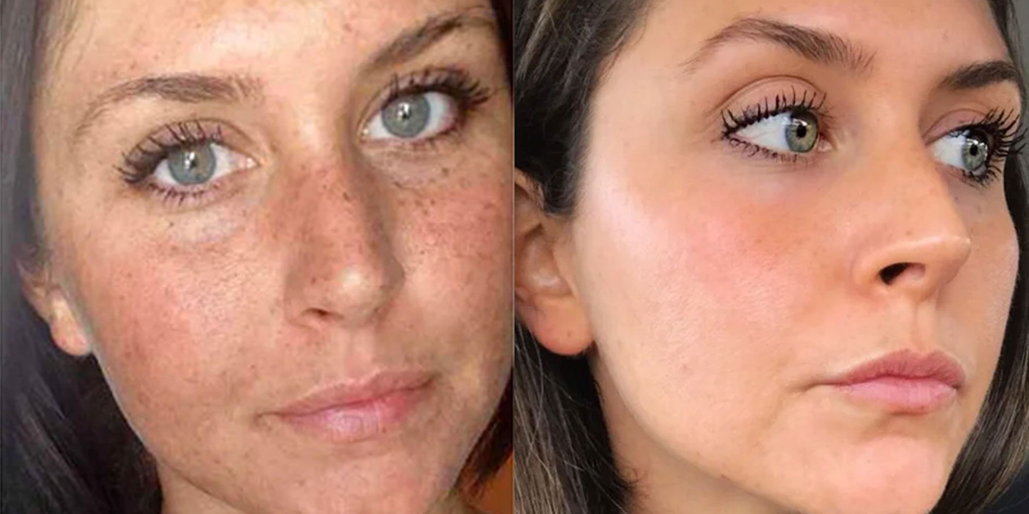 This Woman's Reddit Before-And-After Sun Damage Photo Is