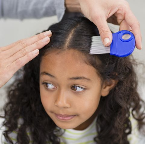 how to get rid of nits and head lice