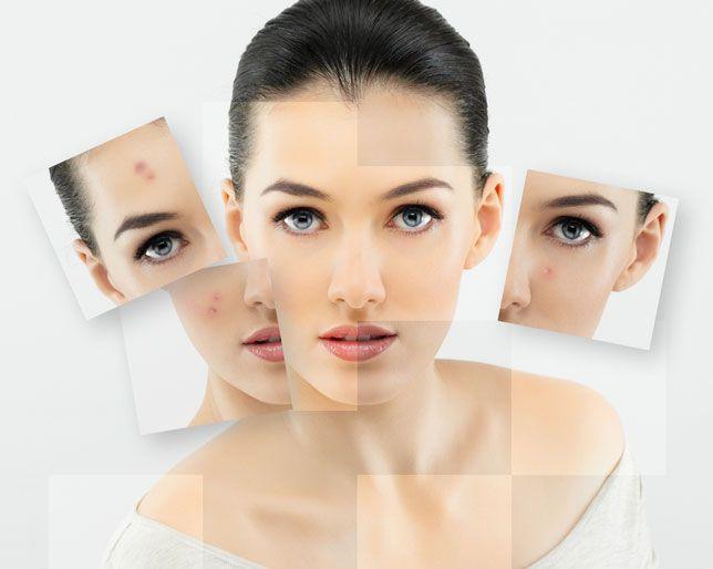 10 Tips for Acne-Prone Skin