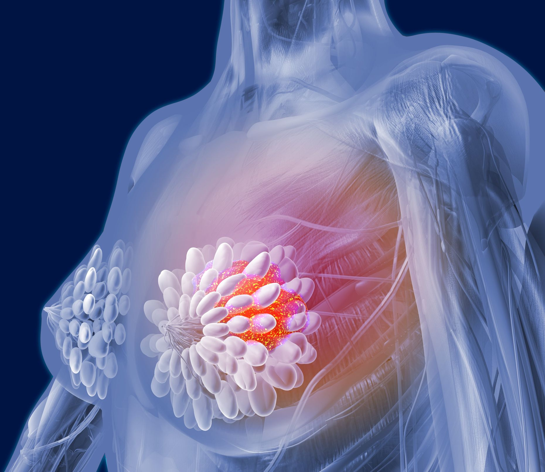10 Ways to Keep Breast Cancer Out of Your Future