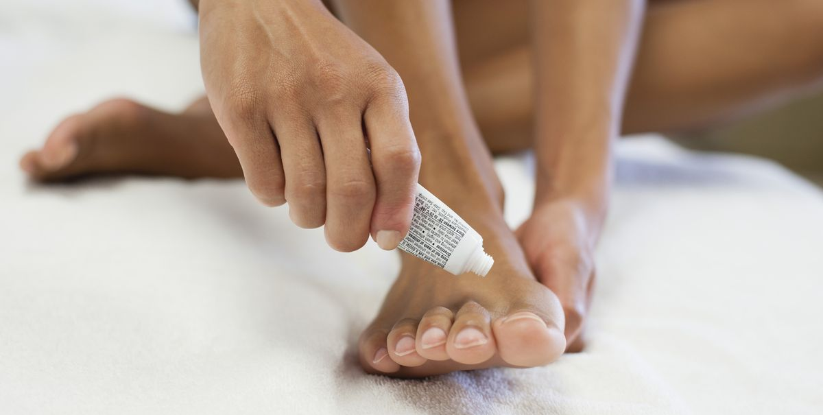How to fix your athlete's foot