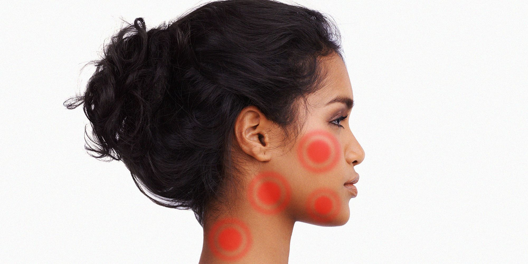how to get redness out of pimples